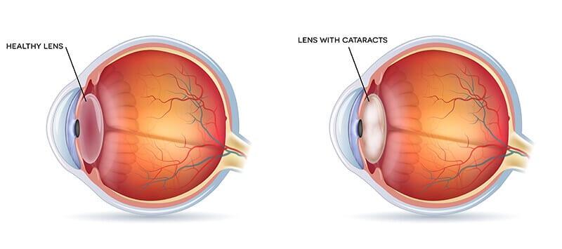 cataract chart