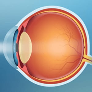 Illustration Showing How Light Enters an Eye With a Cataract