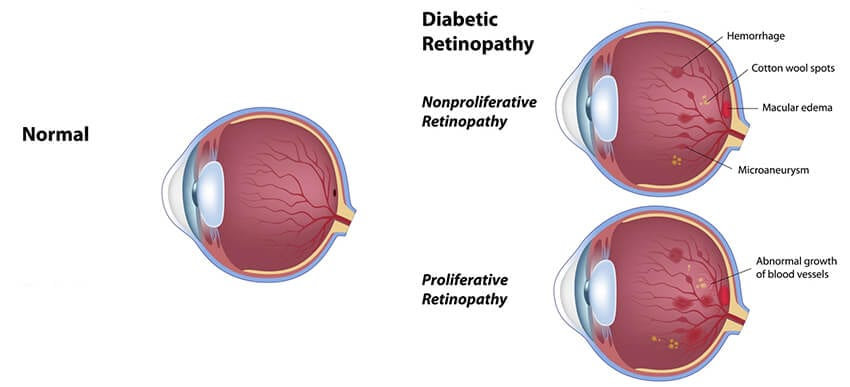 Diabetic Retinopathy chart