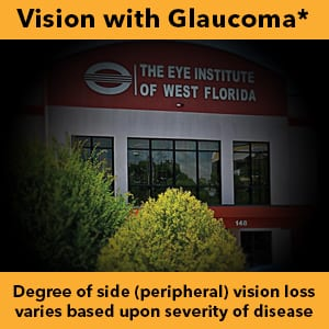Vision with Glaucoma - Degree of side (peripheral) vision loss varies based upon severity of disease