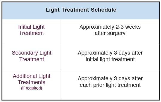 Light Treatment Schedule Chart