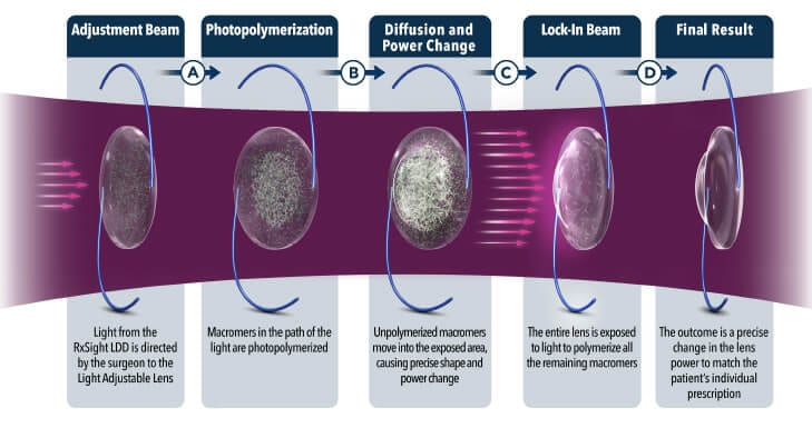 Light Adjustable Lens Example